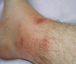 FMF hastalığı cilt lezyonları