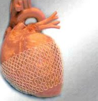 kalp-buyumesi-belirtileri