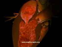 Hamilelerde kapak hastalığı