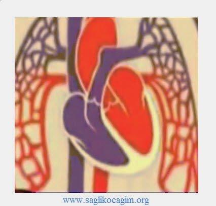 Yaşlılıkta kalp yetmezliği tedavisi
