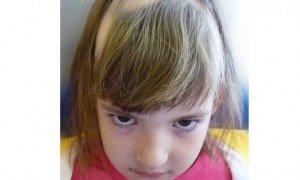 Çocuklarda saç dökülmesi neden olur