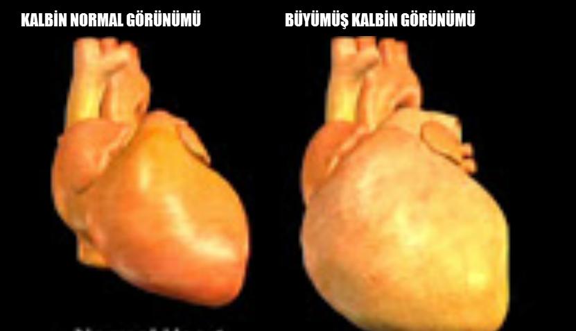 Kalp büyümesi nedir