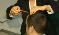 Saç dökülmesi tedavisi