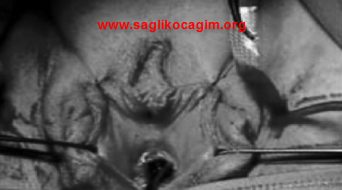 idrar-kacirma-ameliyati