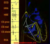 Kalp hastalıkları tanı yöntemleri