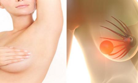 Fibroadenom neden olur