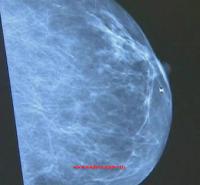 meme-kanseri-icin-ultrason-taramasi