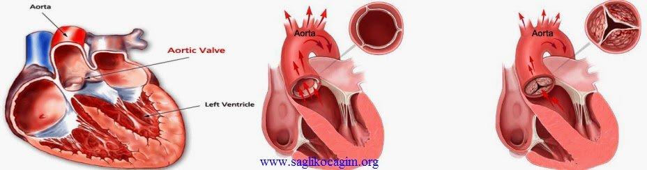 aort-kapak-replasmani