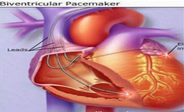 Kalp pili nedir