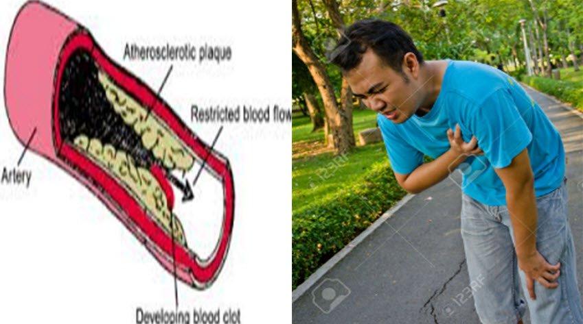 Koroner arter hastalığı belirtileri