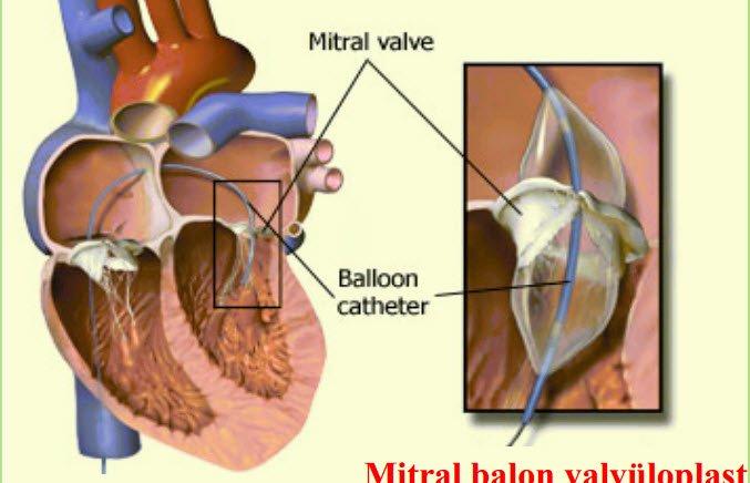 Valvuloplasti Ameliyatı Nasıl Yapılır