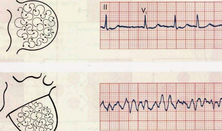 Kalp çarpıntısı tipleri