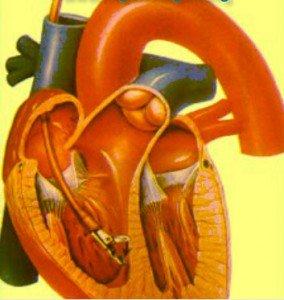 Kalp kası iltihabı tedavisi