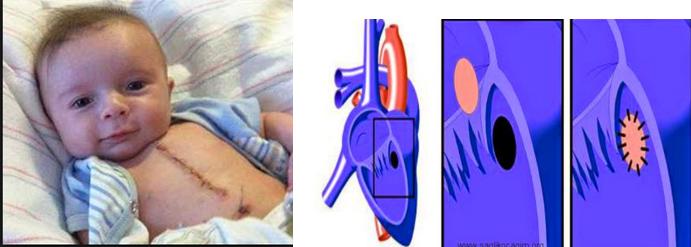 Çocuklarda kalp deliği neden olur
