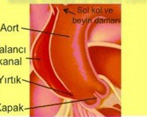 Aort damarı yırtılması teşhisi