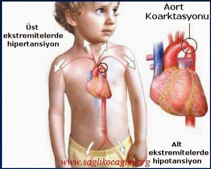 aort-koarktasyonu