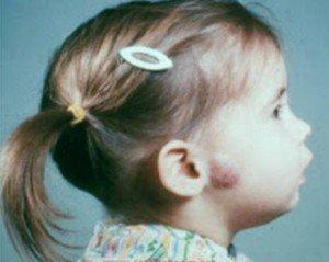 Baş ve boyun tümörleri neden olur