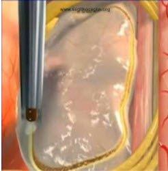 Omurga tümörleri tedavisi