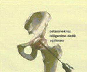 Osteonekroz tedavisi