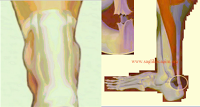 asil-tendon