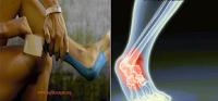 tendon-iltihabi