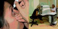 Alerjik konjonktivit tedavisi