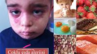 besin-alerjisi