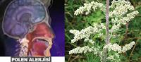 polen-alerjisi