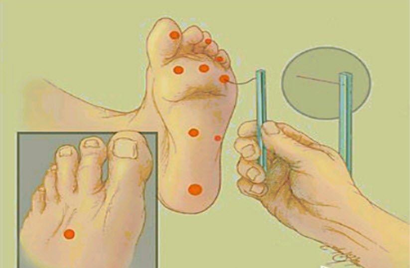 Diyabetik nöropati teşhisi