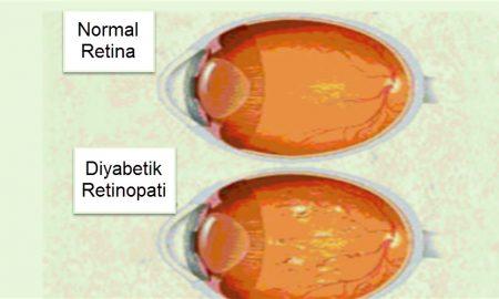 Diyabetik retinopati neden olur