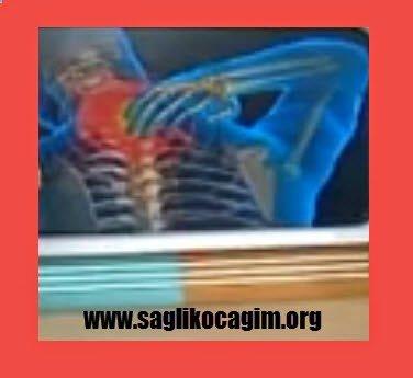 Boyun ağrıları ve fizik tedavi