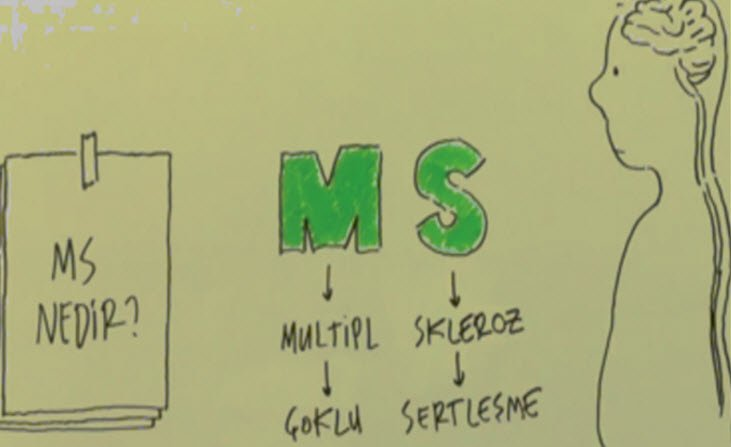 Multipl Skleroz neden olur