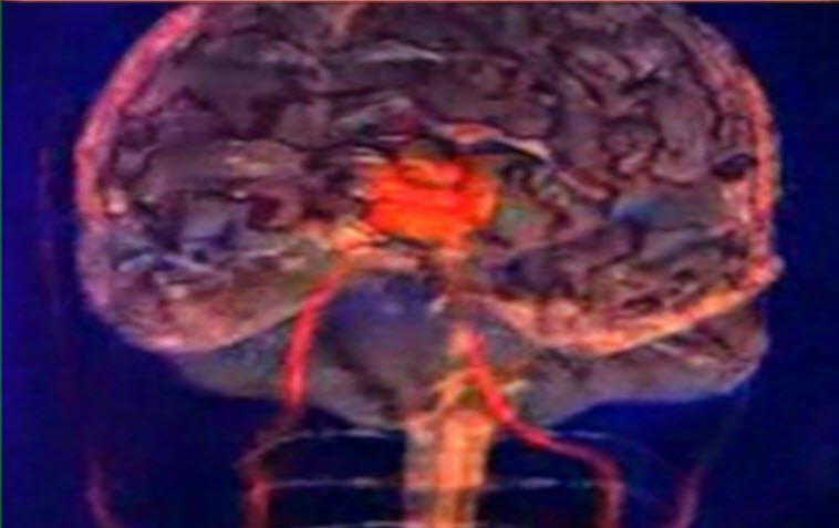 Beyin kanaması neden olur
