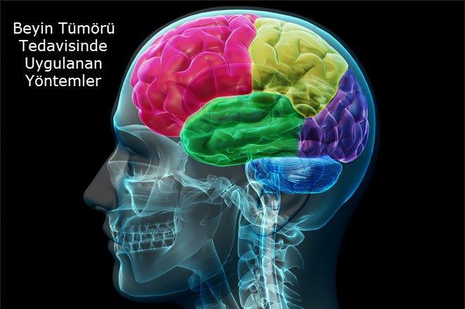 Beyin Tümörü tedavisinde uygulanan yöntemler