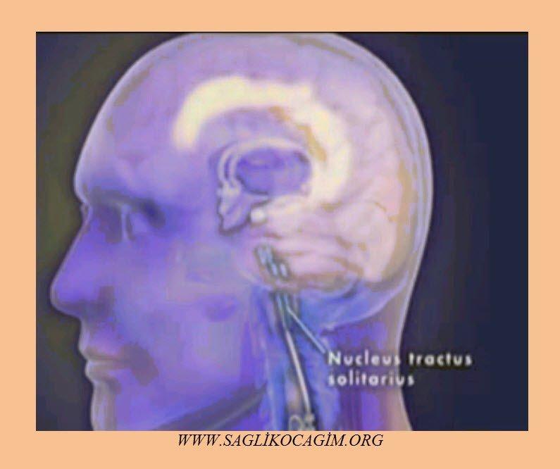 epilepsi-nedir