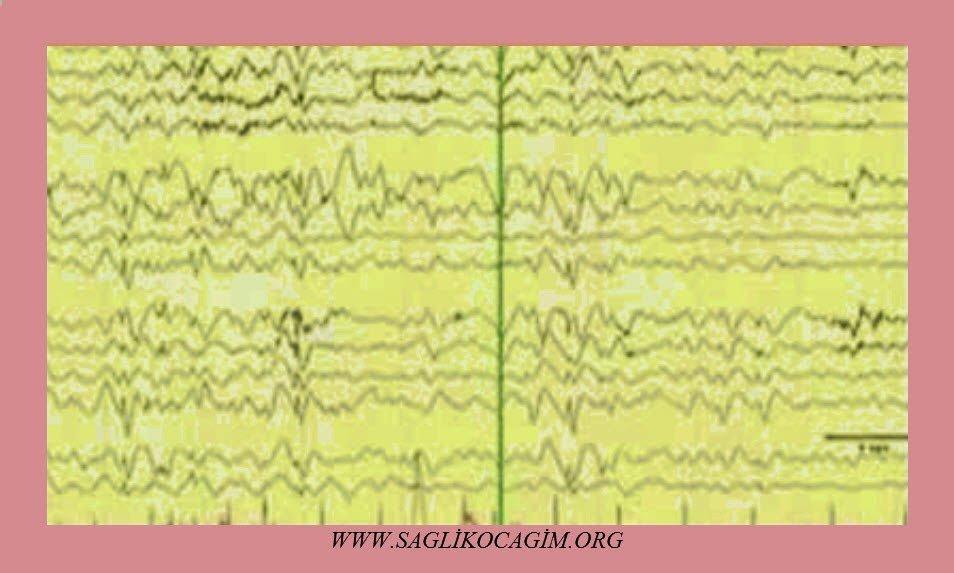Epilepsi tanısı