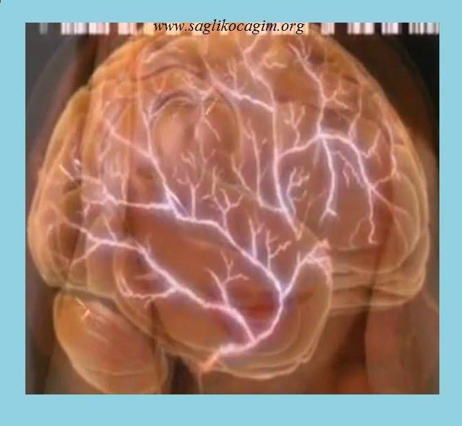 Migren tipleri