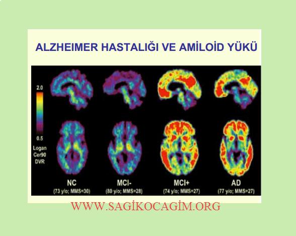 alzheimer-hastaligi
