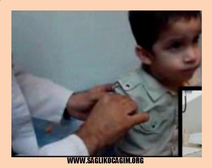 Kabakulak aşısı hastalığı önler mi