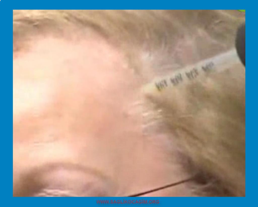 Erkek tipi saç dökülmesi tedavisi
