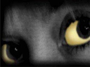 Sarı humma hastalığı belirtileri