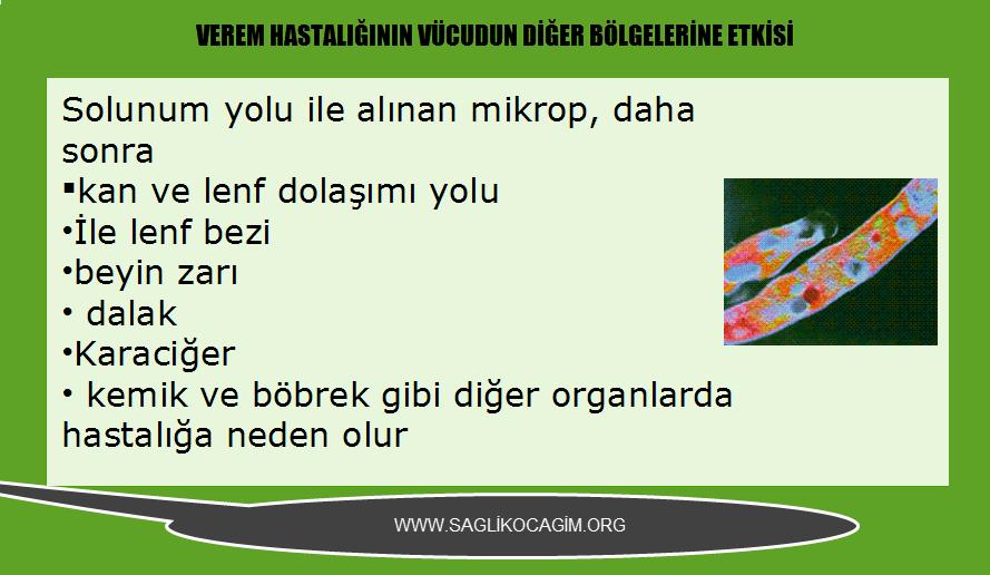 Verem (tüberküloz)