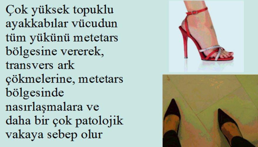 Yüksek topuklu ayakkabı giymek hangi hastalıklara neden olur