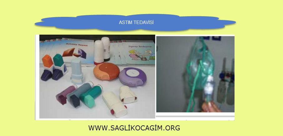 Astım hastalığı tedavisi