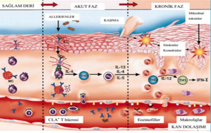 Atopik dermatiti nedir