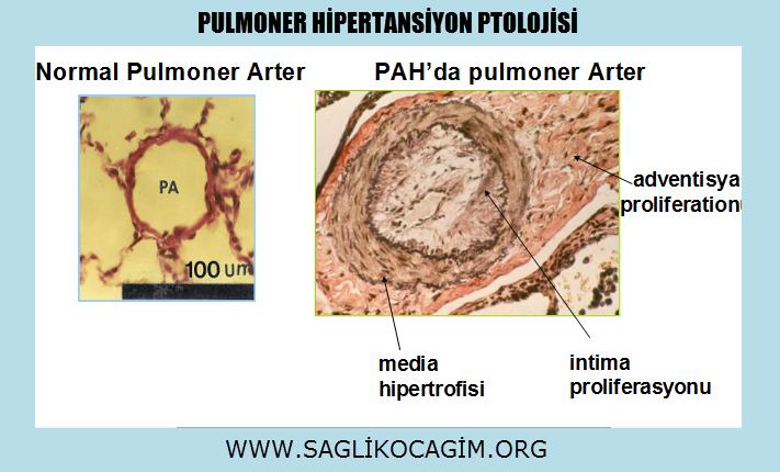 Pulmoner hipertansiyon belirtileri