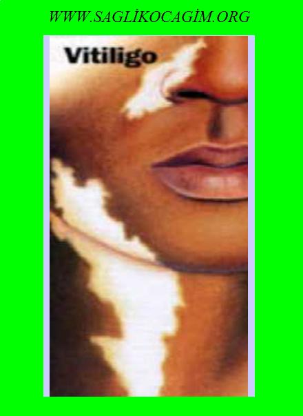 Vitiligo belirtileri