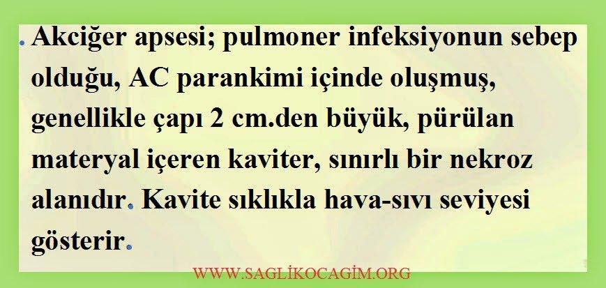 Akciğer apsesi belirtileri