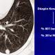 Akciğer nodül nedir