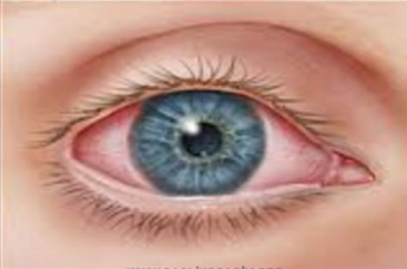 Göz nezlesi neden olur